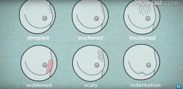 Brystvorte klør