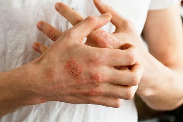 tørr hud eksem