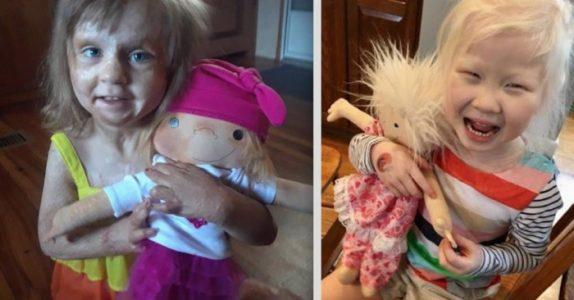 Denne kvinnen lager unike dukker til syke barn – SE de hjertevarmende bildene!